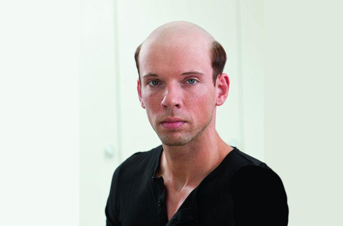 Glatze adé im Haarcenter Hess in Rosenheim - Ihrem Zweithaarspezialist