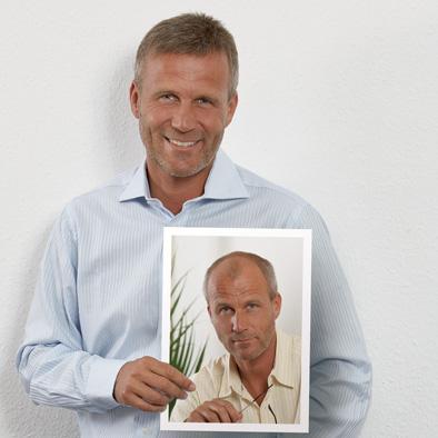 Zweithaarsystem für den Mann im Haarcenter Hess in Rosenheim